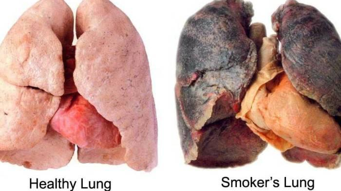 Ingin Paru-paru Membaik? Mantan Perokok Sebaiknya Banyak Makan Buah Ini